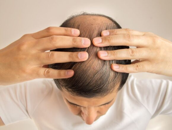 DHT: Why Does Affects Hair Loss and How to Stop It