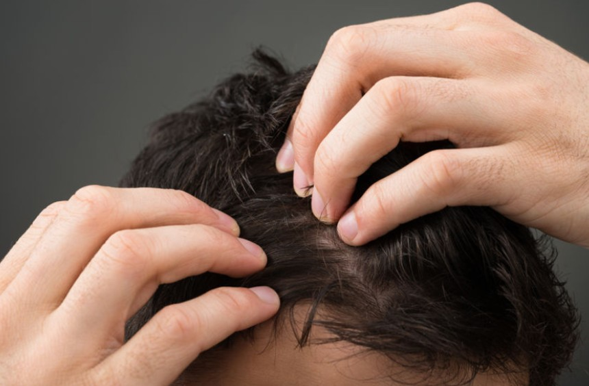 Hair Loss: What Are The Causes & How To Eliminate Them